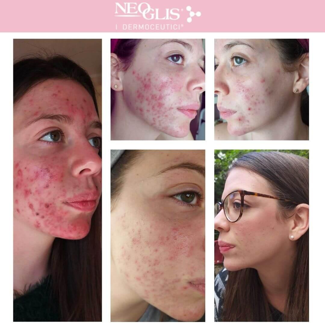 trattamento-acne-neoglis